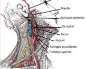cirugia-carotida