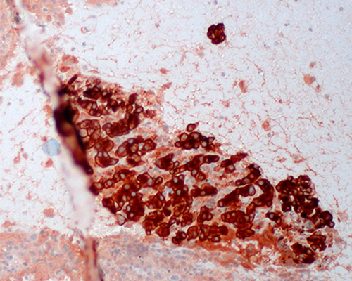 melanoma-avanzado