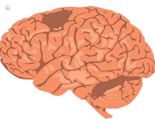 tumores-sistema-nervioso