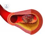 trombosis-y-la-embolia