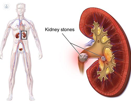 sabes-que-son-los-calculos-renales-o-piedras-en-el-rinon-descubre-cuales-son-sus-causas-sintomas-y-tratamiento-con-el-doctor-martin-oses