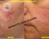 acne-mujer