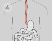 esofago-reflujo-gastroesofagico