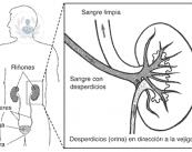 cancer-de-rinon