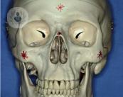 traumatismo-facial