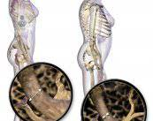 osteoporosis-huesos
