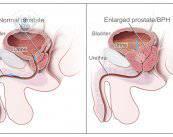 hipertrofia-benigna-de-prostata