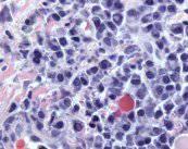 hematologia-sangre