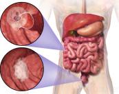 cancer-colorrectal