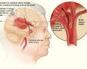 accidente-cerebrovascular