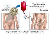 trasplante-de-medula