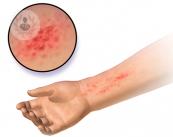 dermatitis-atopica-como-tratarla