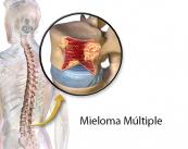 mieloma-multiple-cancer-de-la-sangre