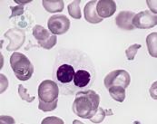 sindrome-mielodisplasico-enfermedad-de-la-sangre