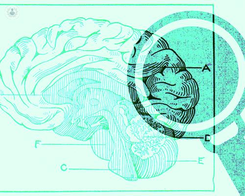 enfermedades-cerebrovasculares-o-patologia-vascular