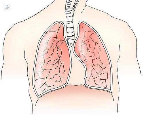 pulmon-y-nodulo-pulmonar