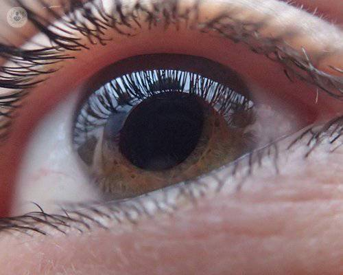 ojo-enfermo