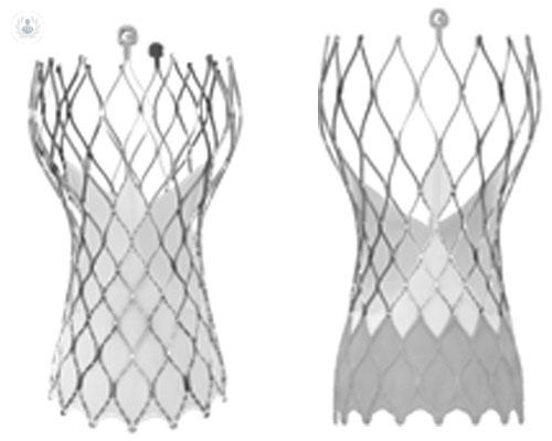 protesis-valvulares