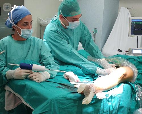 Médico vascular para dolor de piernas