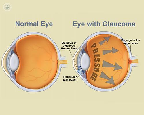 anatomia-ojo-con-y-sin-glaucoma