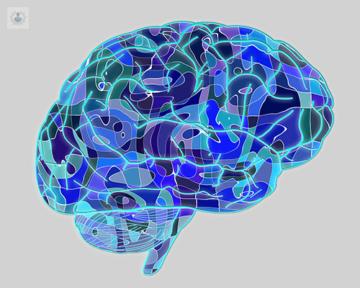 prevenir-embolia-cerebral