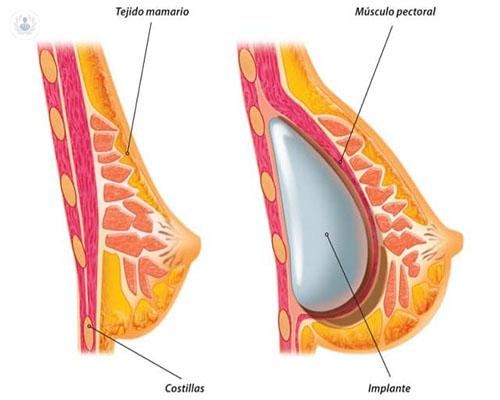 implantes-mamas-grafico