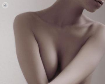 mastopexia-para-la-elevacion-de-mamas