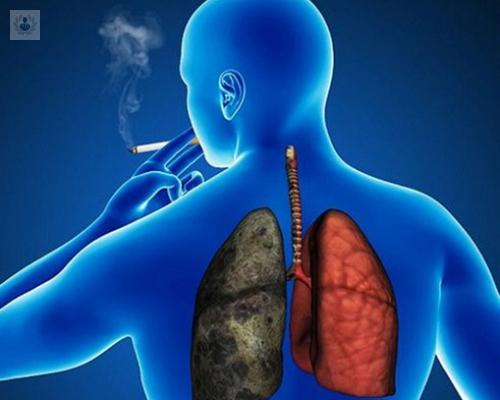 enfermedad-pulmonar-obstructiva-cronica-cuidados-de-enfermeria