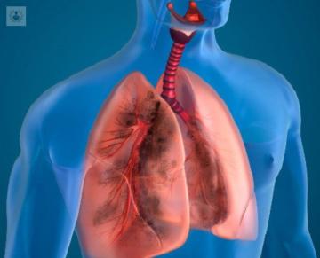 broncoscopia-rigida