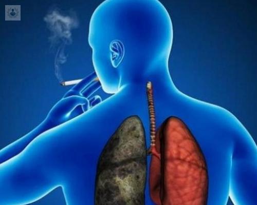cancer-de-pulmon-estadios