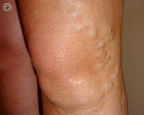 tratamiento-de-las-varices-con-radiofrecuencia-y-espuma-esclerosis-con-espuma imágen de artículo