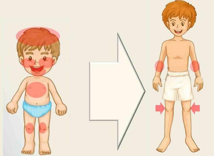 consecuencias-de-la-dermatitis-atopica imágen de artículo
