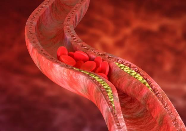 la-deteccion-temprana-de-la-aterosclerosis imágen de artículo