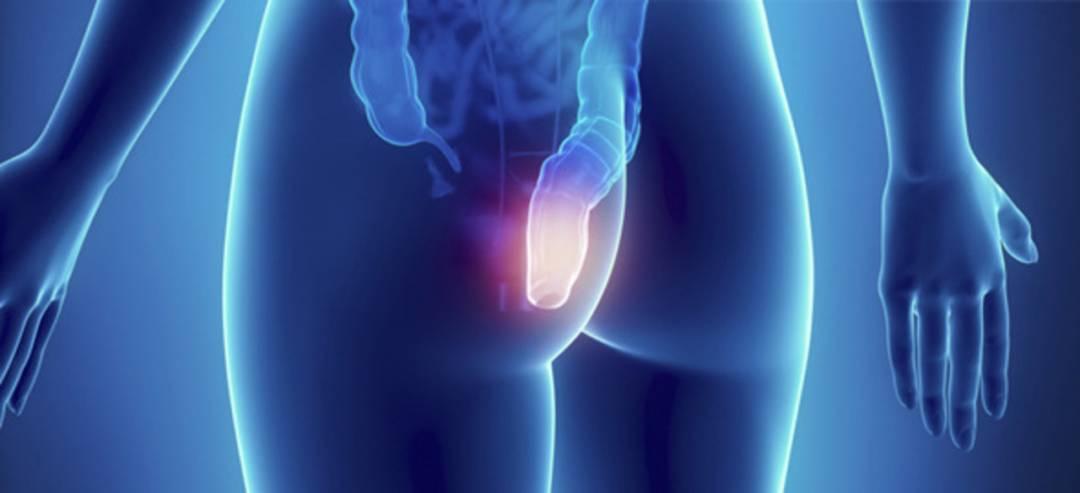 cuando-se-considera-incontinencia-fecal imágen de artículo