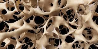 huesos-blandos-por-poca-actividad-fisica imágen de artículo