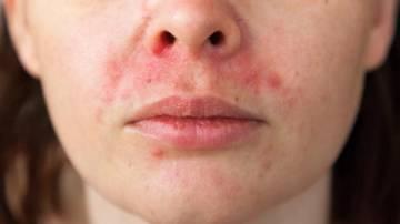problemas-en-la-piel-por-el-uso-de-cubrebocas imágen de artículo