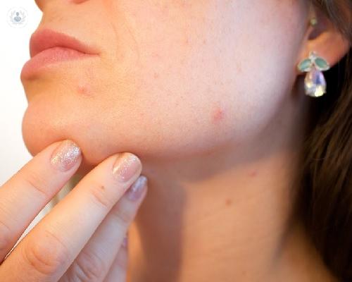 lesiones-pigmentadas-en-la-piel