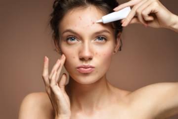 mitos-y-verdades-del-acne imágen de artículo