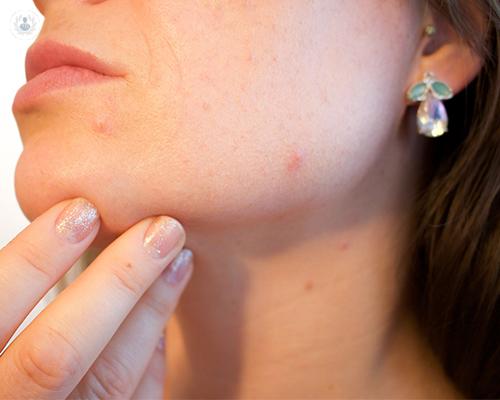 piel-acne