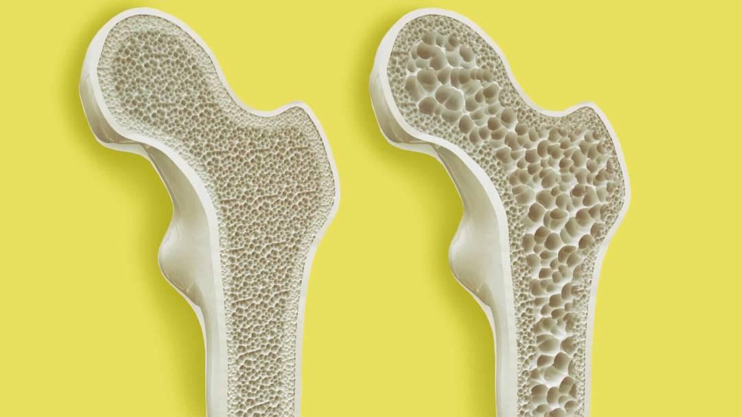 osteoporosis-enfermedad-osea-disminuye-calidad-de-los-huesos imágen de artículo