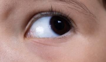 ausencia-del-iris-enfermedad-congenita imágen de artículo