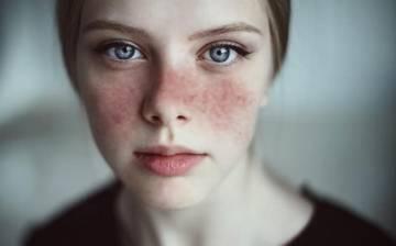 viviendo-con-lupus imágen de artículo