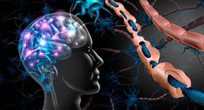 que-es-la-esclerosis-multiple-y-como-detectarla imágen de artículo