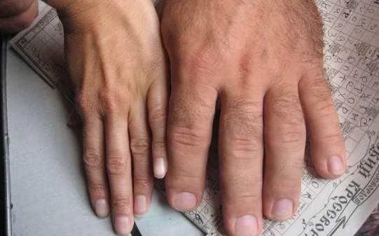 acromegalia-una-enfermedad-rara-que-se-conmemora-hoy imágen de artículo