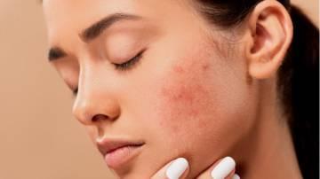 tratamiento-farmacologico-para-acne imágen de artículo
