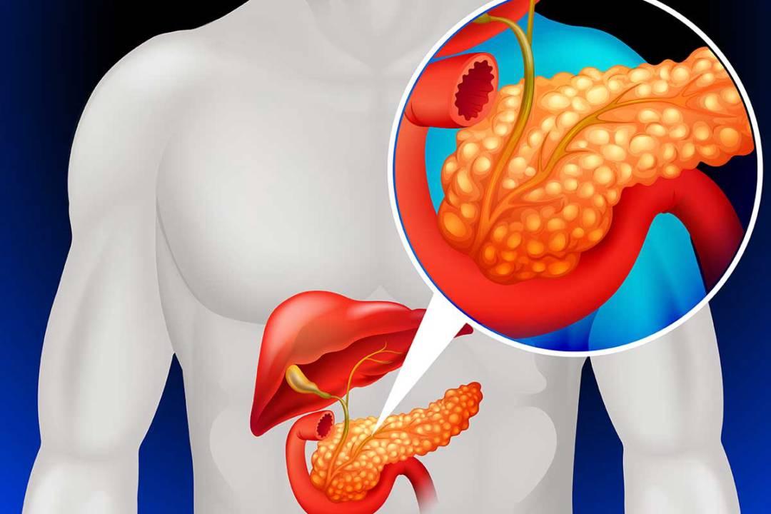vias-de-abordaje-para-enfermedades-pancreaticas imágen de artículo