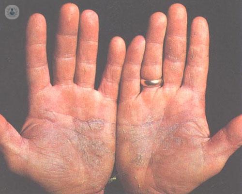 psoriasis-codo-jpg