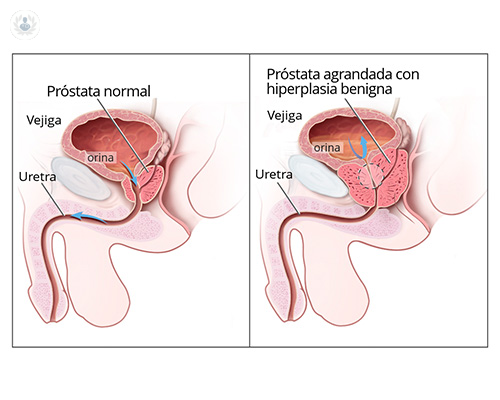 hiperplasia-benigna-de-prostata
