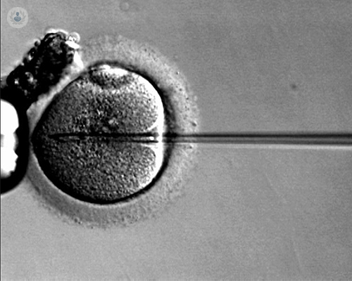 fecundacion-in-vitro