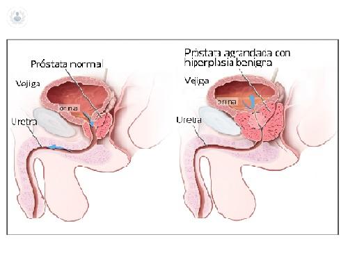 Próstata agrandada prolongada causa cáncer
